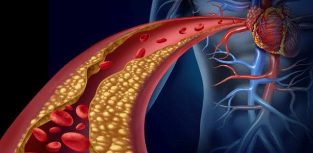 Лечение ишемической болезни сердца в Израиле: госцены 2021
