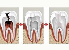 Удаление нерва зуба или удаление пульпы